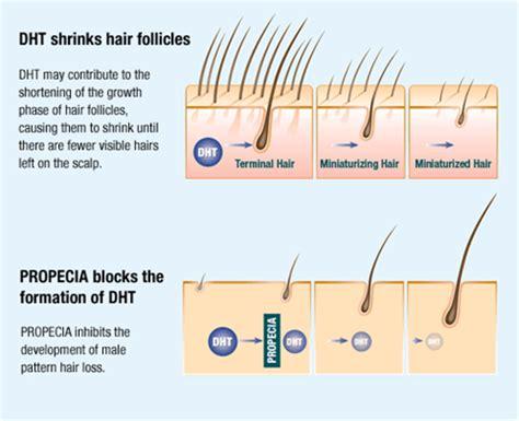 male pattern baldness quiz california female hair loss hair loss treatment
