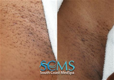 orange pubic hair picture laser hair removal deal los angeles laser hair removal