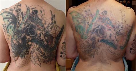 fade fast tattoo removal            tattoo removal
