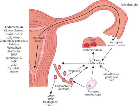 endometriosis the lancet