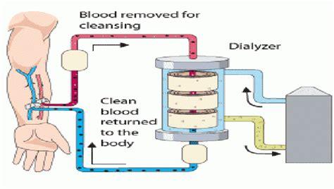 Mesin Hemodialisa hemodialisa rumah sakit jih