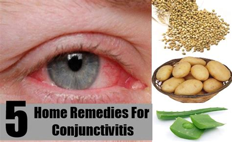 top home remedies for conjunctivitis treatments