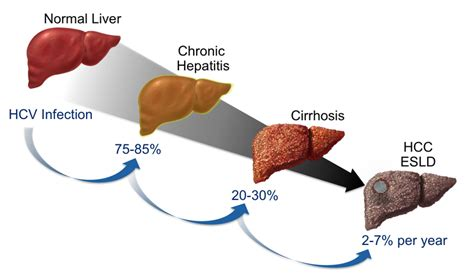liver failure stages concepts history of hepatitis c infection evaluation staging and
