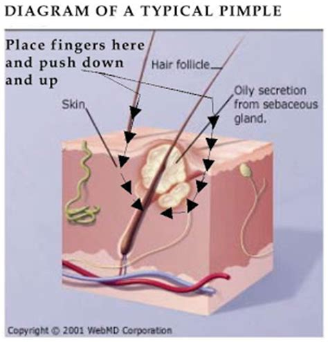 diagram of a pimple astridestella info skin care grooming make up cosmetics