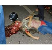 Gruesome Car Crash Victims  Bing Images