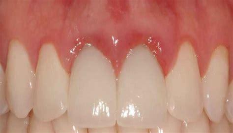 image gallery swollen gums