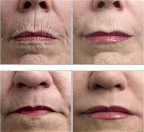 Does Red Light Therapy Work Homemade Natural Wrinkle Removers Positivemed