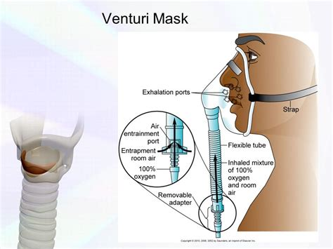 Masker Venturi venturi mask