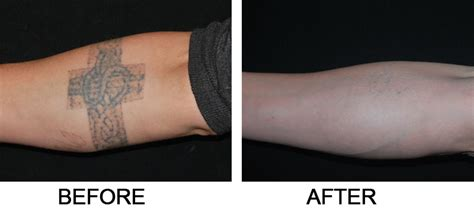 surgical tattoo removal before and after laser removal salmon creek plastic surgery