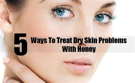 7 Ways To Soothe Skin Irritations by 5 Easy Ways To Treat Skin Problems With Honey Diy