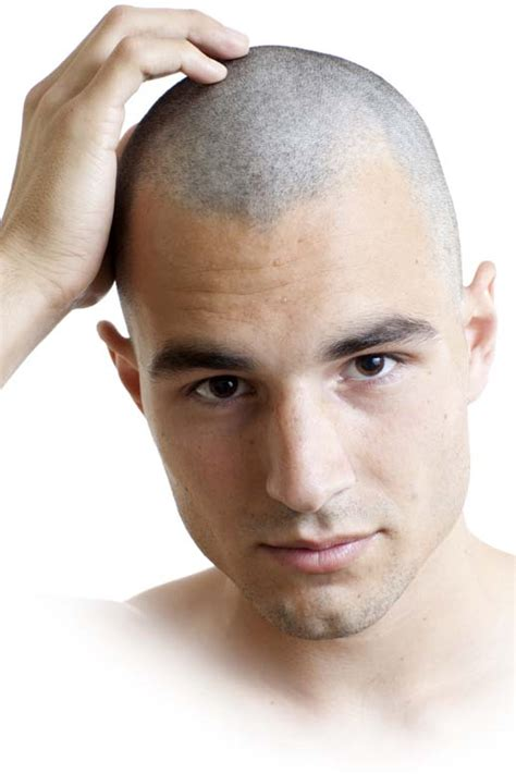 bald on top of head men hairstyles mens hairstyles a shaved head for thinning hair globezhair