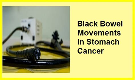 black bowel movement with stomach cancer