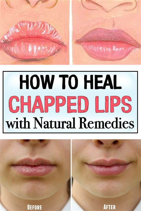 how to a to heal how to heal chapped with remedies iwomenhacks