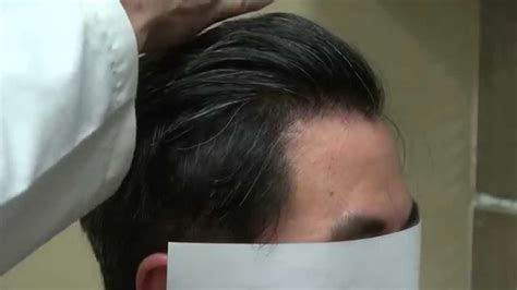asian men crowns are thin fue asian man receding hairline bald hair loss treatment 1