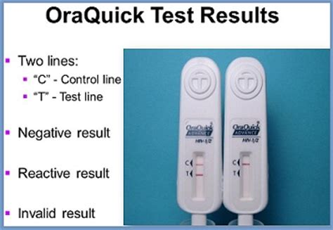 buy oraquick hiv test kit from cvs walgreens and walmart