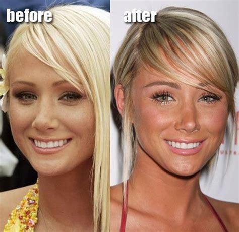 375 best images about celebrity plastic surgery on pinterest celebrity plastic surgery before after pinterest