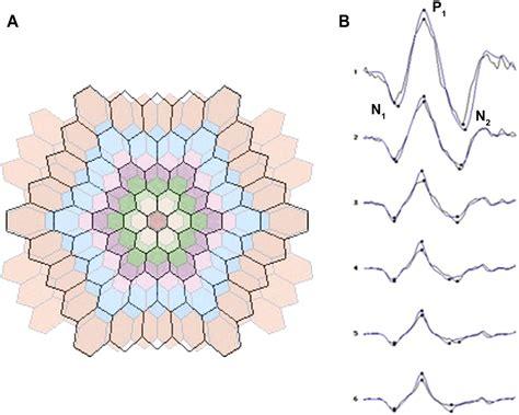 pattern erg standard quantitative assessment of the 103 hexagon multifocal