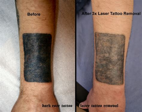 laser tattoo removal black green laser removal no56