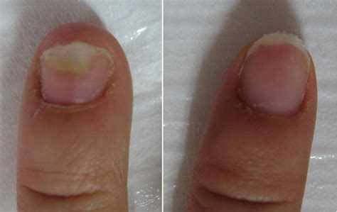 onychomycosis treatments medical information and advice