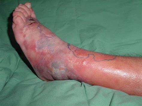 best antibiotics for cellulitis antibiotics for cellulitis pictures photos