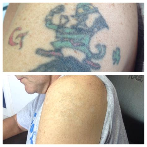 tattoo removal reviews removal reviews disappearing inc reviews