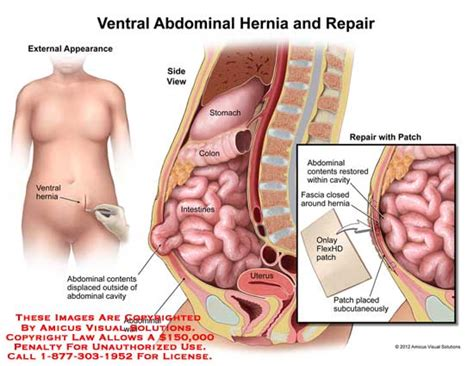 robotic surgery for abdominal wall hernia repair a manual of best practices books ventral abdominal hernia and repair
