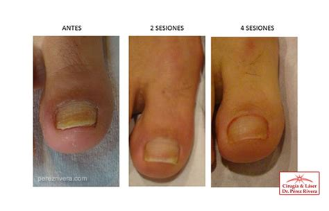 Imagenes De Uñas Con Onicomicosis | onicomicosis tratamiento laser para onicomicosis hongos