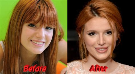 bella thorne before and after surgery facts about bella thorne plastic surgery
