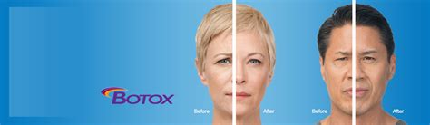 Dentists Doing Botox by Appleton Botox Cosmetic At Timbercrest Dental Center Wi
