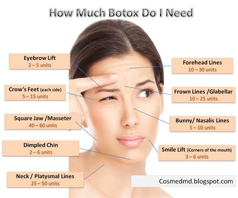 botox injections botox prices around the world cosmetic medicine md