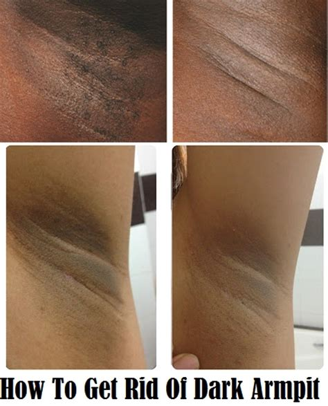 how to get rid of light spots on face how to get rid of dark armpit make your armpit soft and