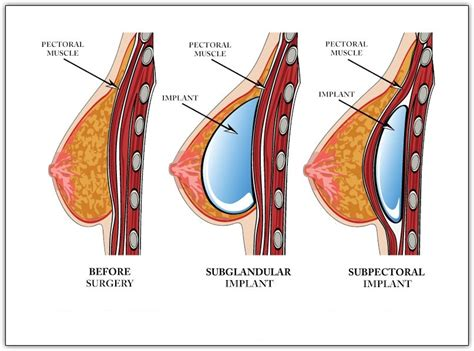 With The Breast Implants by Successful Breast Augmentation Before And After