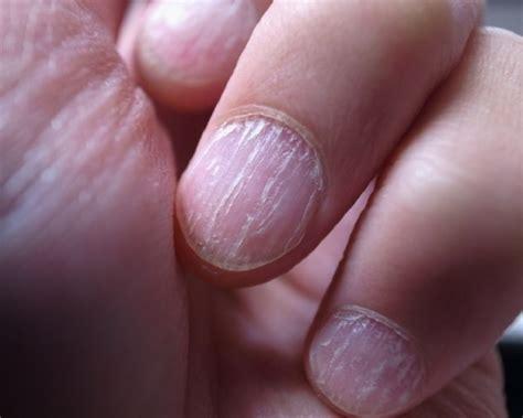 split nail split nails treatment for split nail home