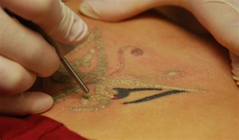 tattoo removal swelling miami center for dermatology cosmetic dermatology laser