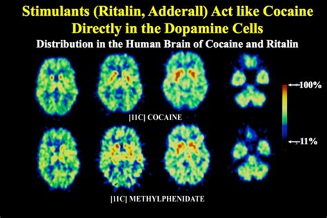 does adderall cause mood swings physicaldangers