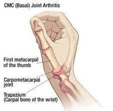 scaphoid and trapezium answers on healthtap