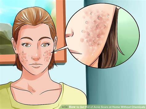 How To Get Rid Of Acne Scars by How To Get Rid Of Acne Scars At Home Without Chemicals