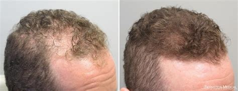 rogaine before and after pictures finasteride minoxidil before after synthroid hair loss