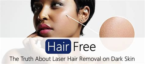 laser hair removal can benefit dark skinned people spa cielo the truth about laser hair removal on dark coloured skin
