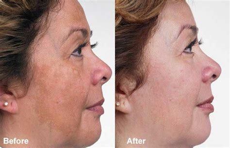 light chemical peel before and after chemical peels lighten pigmentation reduce acne scars