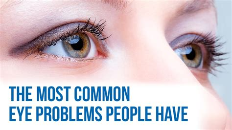 eye problems common eye problems