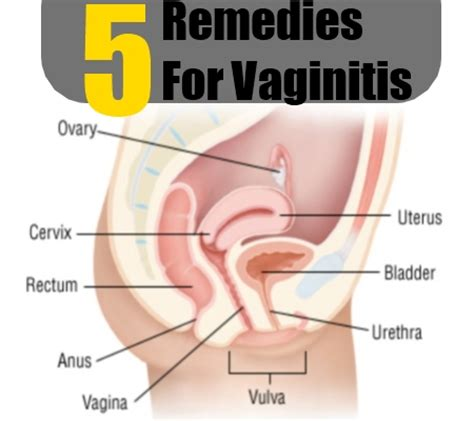 5 vaginitis herbal remedies treatments and cure