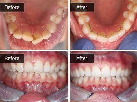 teeth straightening gallery wwwbarntondentalcom