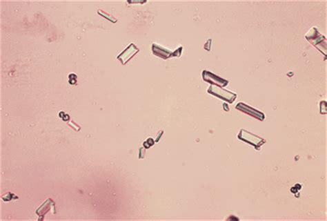lab patologi klinik urinalysis sedimen