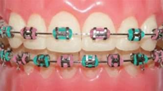 braces color ideas braces color ideas
