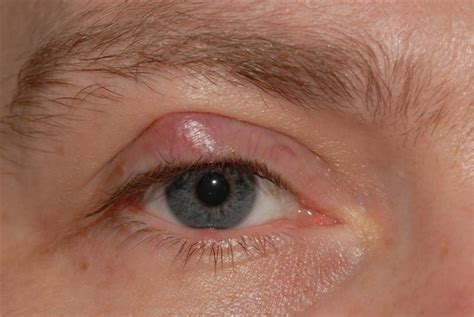 cyst on s eyelid eyelid cysts bopss