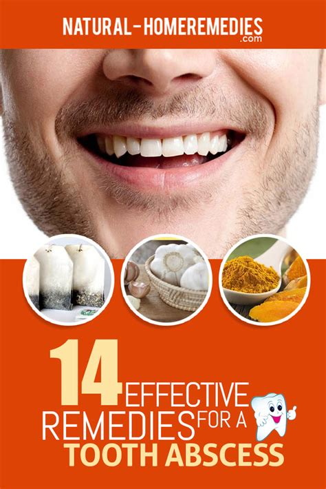14 effective treatments for a tooth abscess how to treat