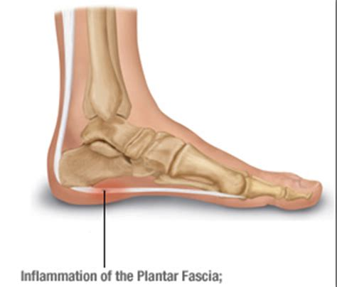 plantar fasciitis minimalist shoes how runners can avoid plantar fasciitis go minimalist or