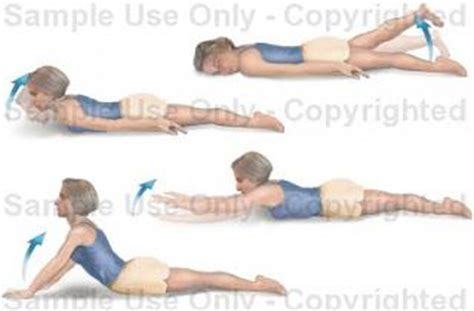 17 best images about back injuries lordosis spinal stenosis ankylosing spondilitis and