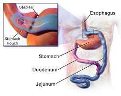 alimentazione reflusso gastrico reflusso gastroesofageo sintomi cause e cura